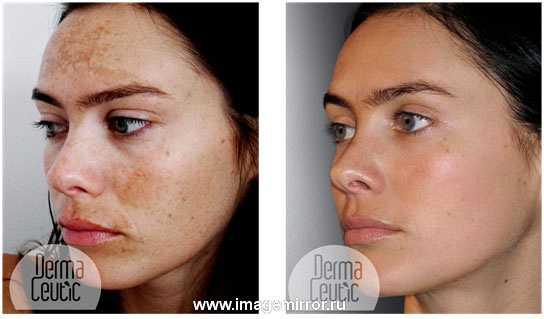 kak izbavit sya ot pigmentatsii  1