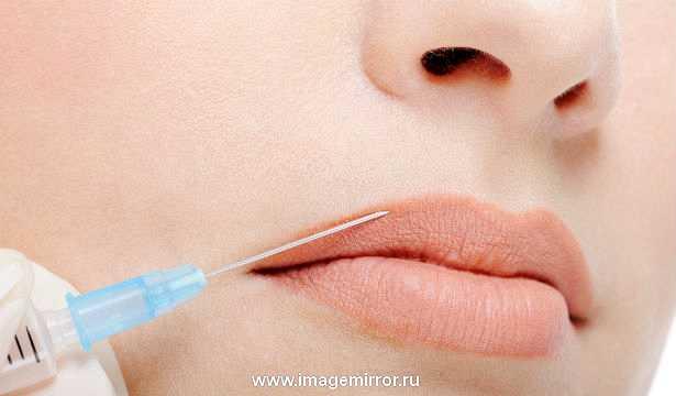 Как увеличить губы с помощью инъекций