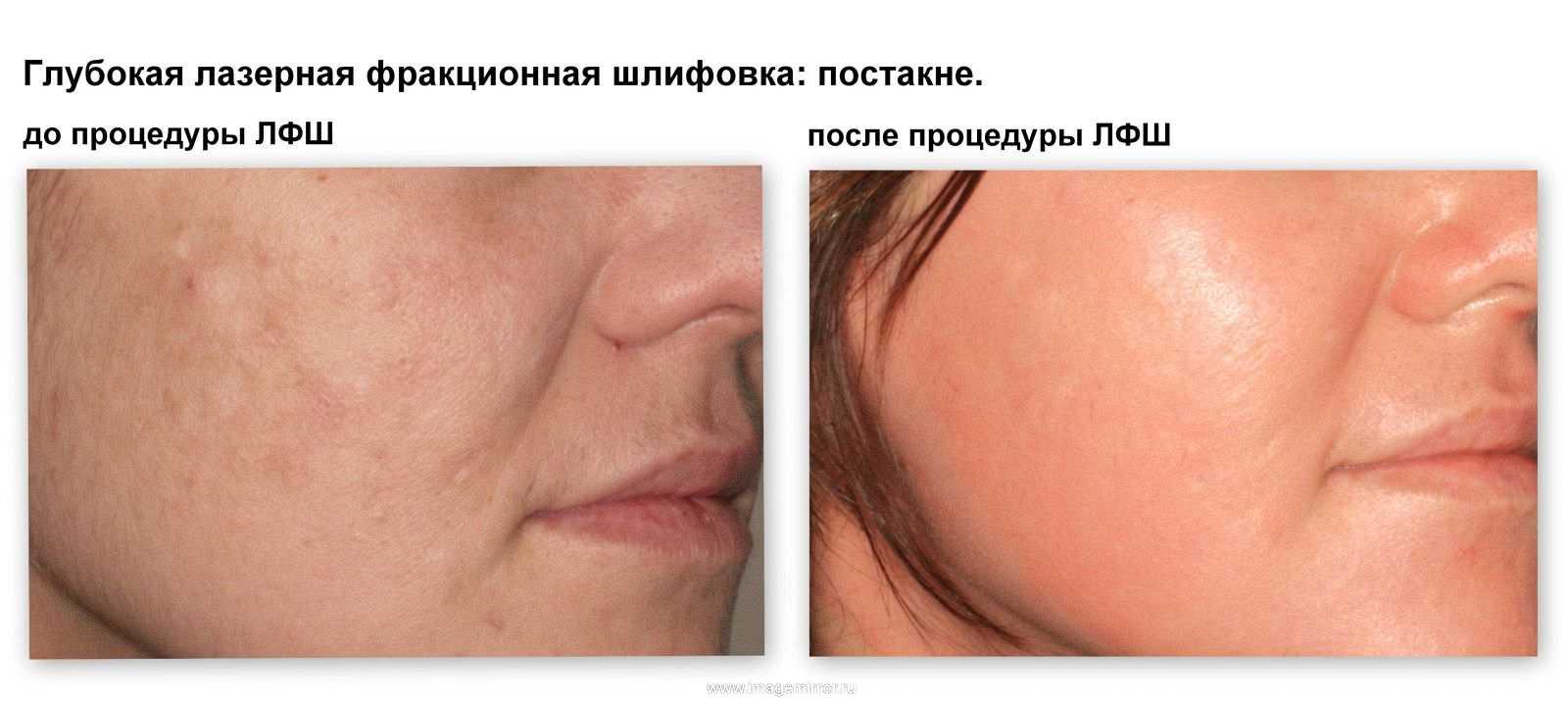 omolozhenie kozhi lazernaya fraktsionnaya shlifovka 1