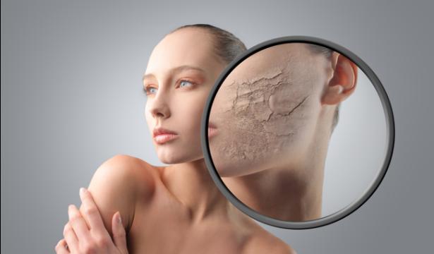 Топ 4 эффективных масок для сухой кожи